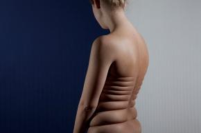 REK skin manipulations  juuke schoorl 2